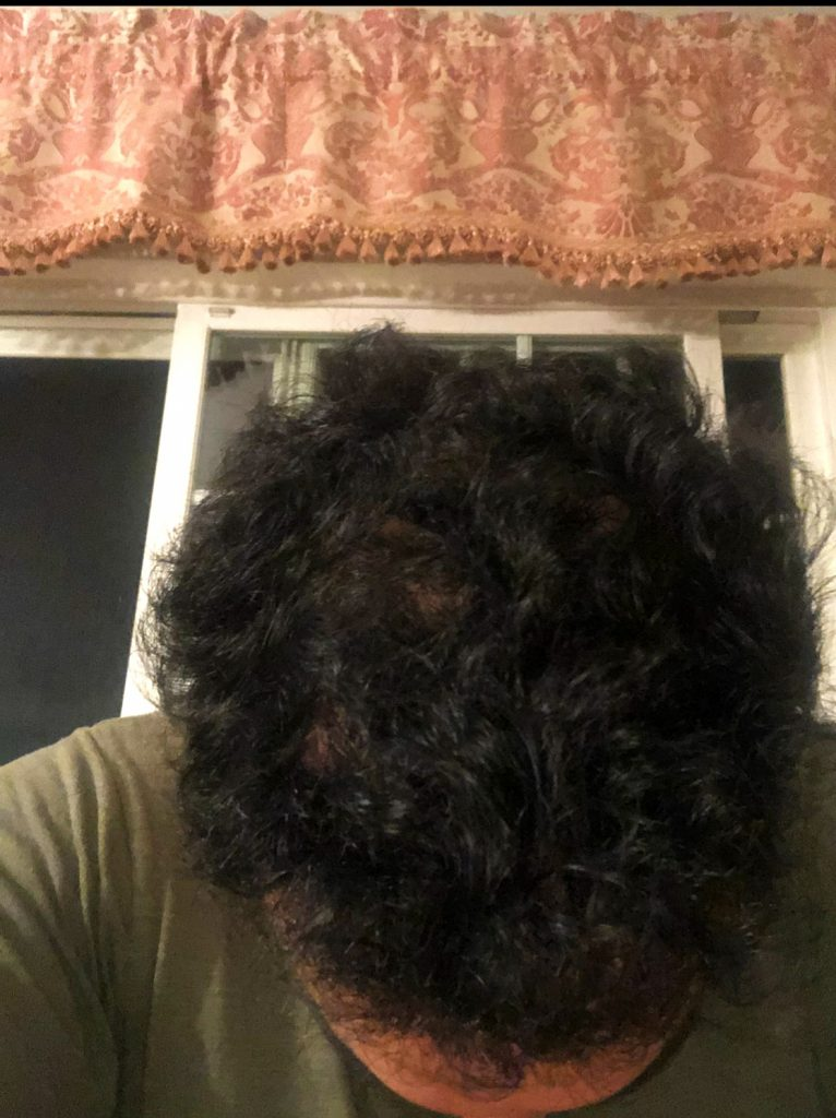 After PRP for Hairloss therapy