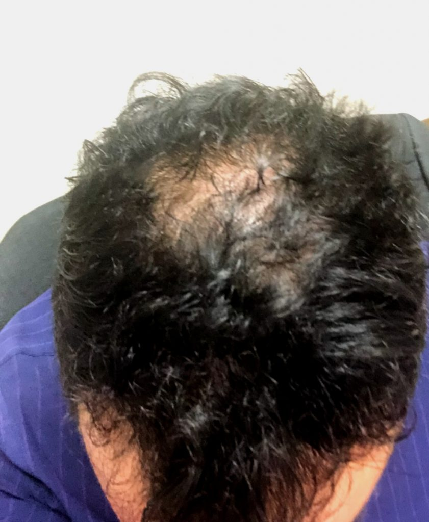 Before PRP for hairloss